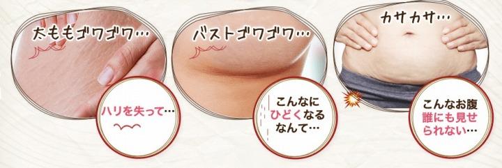 妊娠線の痕